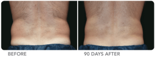 Cool-lipo-before-and-after-man