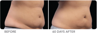 Cool-lipo-before-and-after-woman